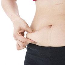 Magenverkleinerung